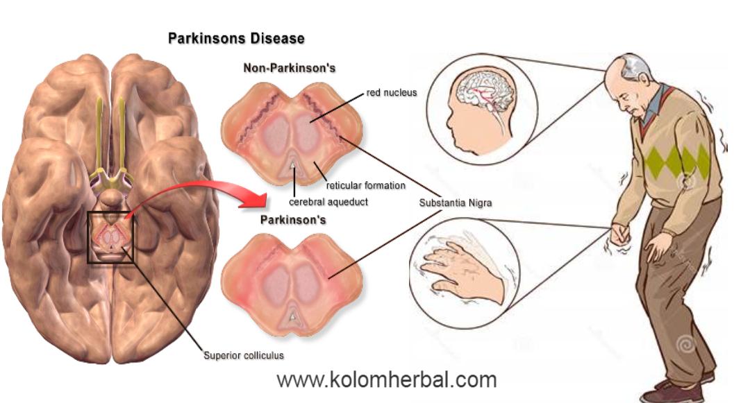Pengertian dan Gejala Penyakit Parkinson